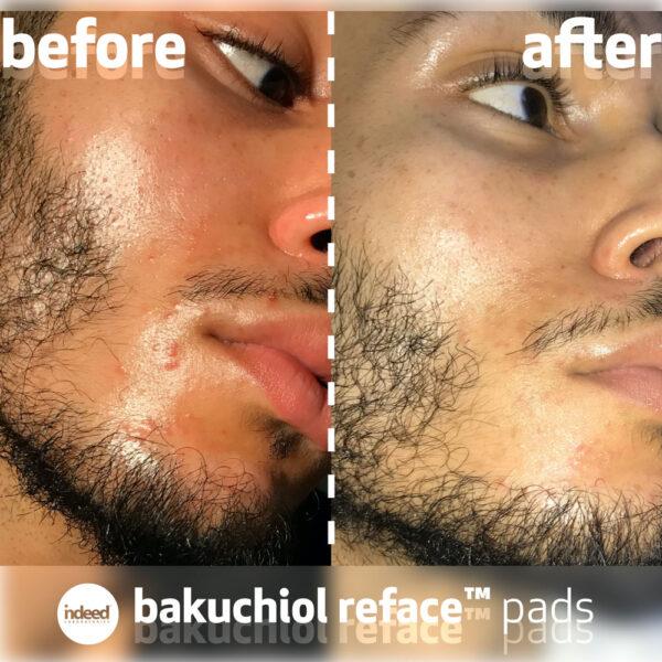 Dischete anti-aging si anti-acnee, cu niacinamida si bakuchiol, Indeed Labs, 30 buc